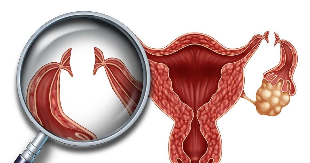 Spirale Verrutscht Schwangerschaft Möglich