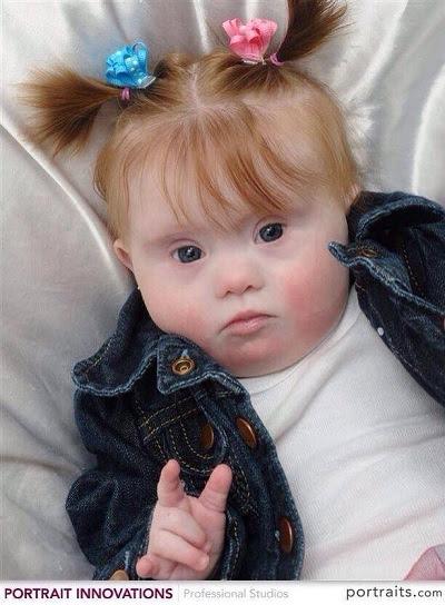 garotinha com síndrome de down