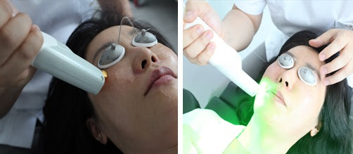 Renewme Skin Clinic Laser Treatments For Tightening Pores
