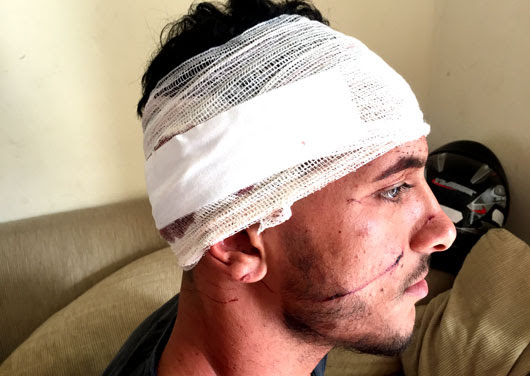 Jovem levou sete pontos na cabeça | Foto: Notícias de Santaluz