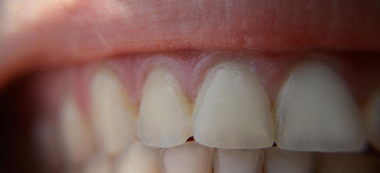 Teeth Whitening Can Cause Permanent Damage Ubc Prof