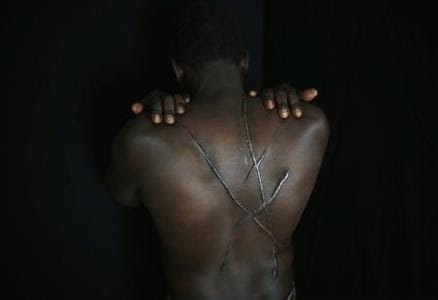 Hassan Mekki, a 32-year-old Sudanese migrant, shows scars on his back in Athens December 5, 2012. REUTERS-Yannis Behrakis