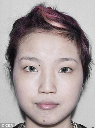Huang Silan, a 20-year-old lounge singer, before surgery