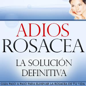 Libro Adios Rosacea de Carmen Romero