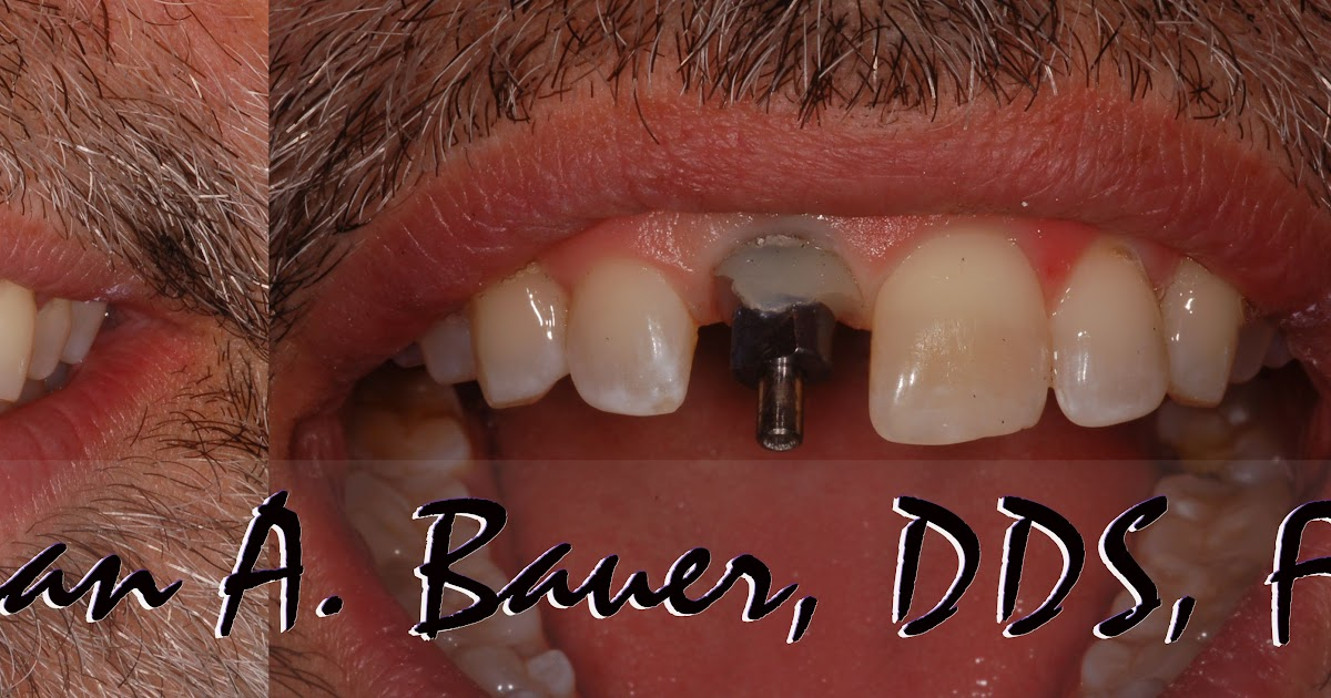 Bauer Dentistry & Orthodontics: Dental implant temporary on