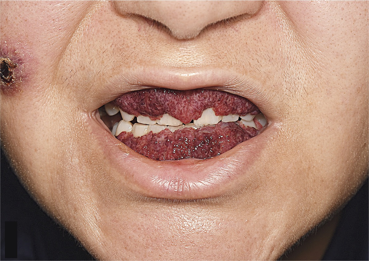 The 42-year-old's teeth became encased in overgrown gum. Credit: nejm