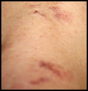 "Dermatitis Herpetiformis and other ""Atypical"" Symptoms of ..."