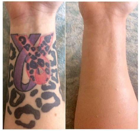 tattoo cover up makeup ? Miami's Best makeup artist