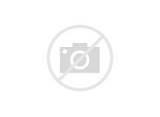 Knee Injury Diagnosis Images