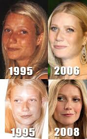 Is this Gwyneth Paltrow before and after plastic surgery?