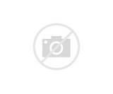 Injury Knee Photos