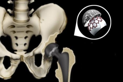 Vea el <a href=http://www.elmundo.es/elmundosalud/documentos/Vea el gráfico sobre lesiones osteoarticulares. | Gracia Pablos