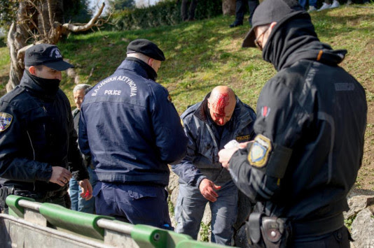 Γιάννενα: Οργισμένη ανακοίνωση των αστυνομικών για τους 7 τραυματίες συναδέλφους τους