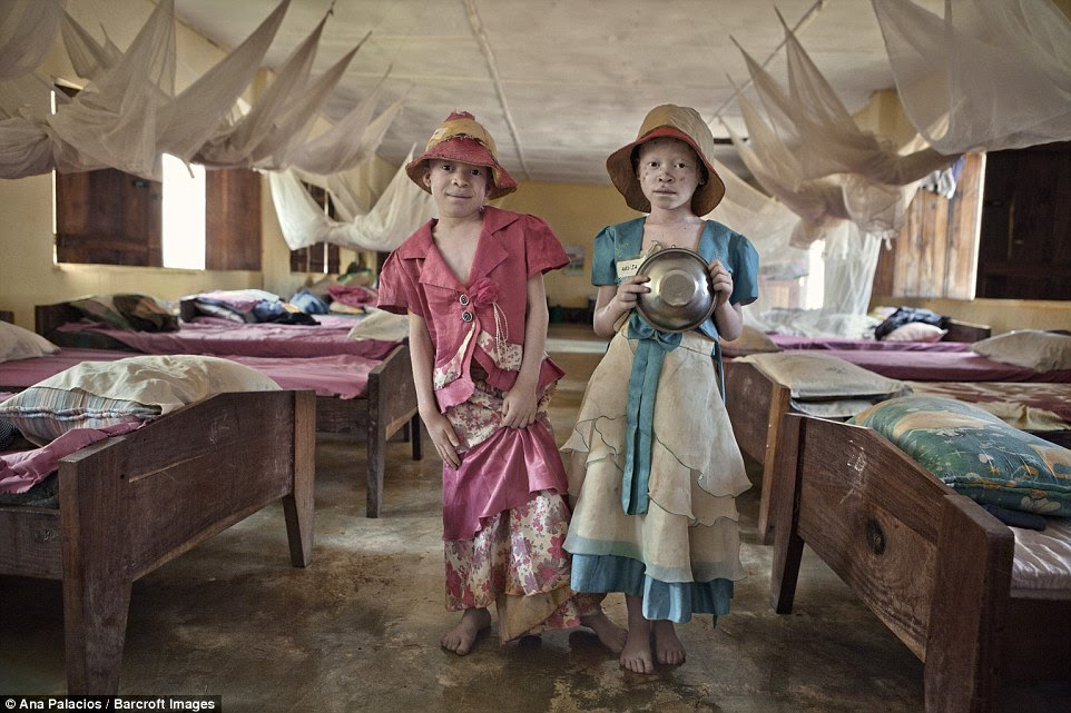 This is the one safe haven for albinos in constant danger from vicious human poachers who want to sell their body parts to witch doctors. At the centre, a hundred albinos live alongside people with a range of physical and mental impairments