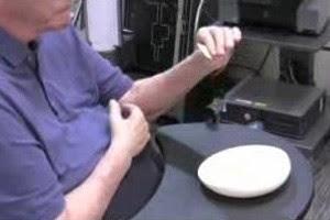 Paciente recuperou o movimento de pinça dos dedos (Foto: Clark Bowen/Reprodução)