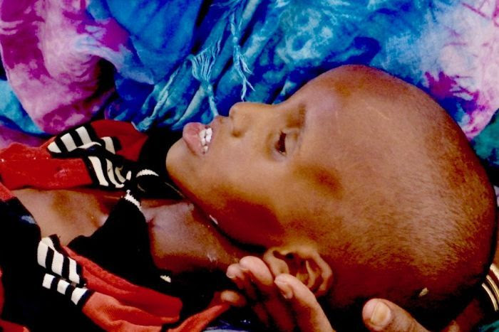A severely malnourished Somaliland child lies in a person's arms.