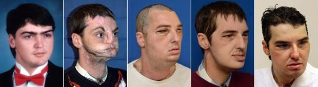 Fotos mostram Richard antes do acidente, após atirar contra si mesmo e a evolução depois de passar pelo transplante de face (Foto: University of Maryland Medical Center e Pat Semansky/AP)