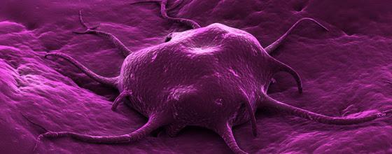 Le lien entre cancer et environnement toujours en débat