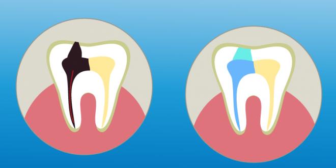 Guia De Precio De La Endodoncia Cual Es El Mejor Precio