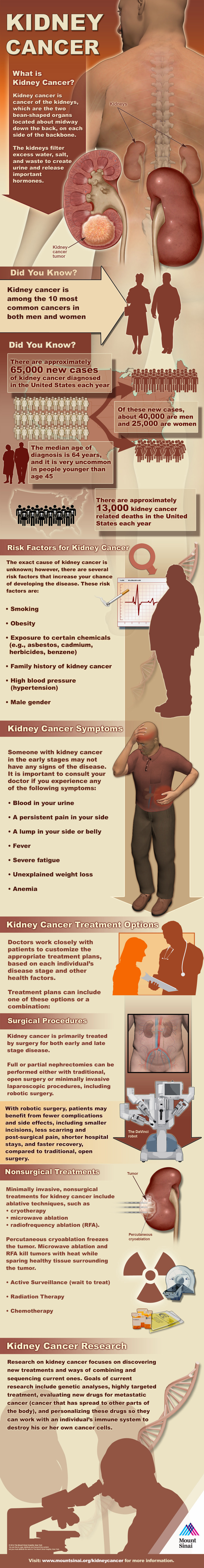 Infographic: Kidney Cancer #infographic
