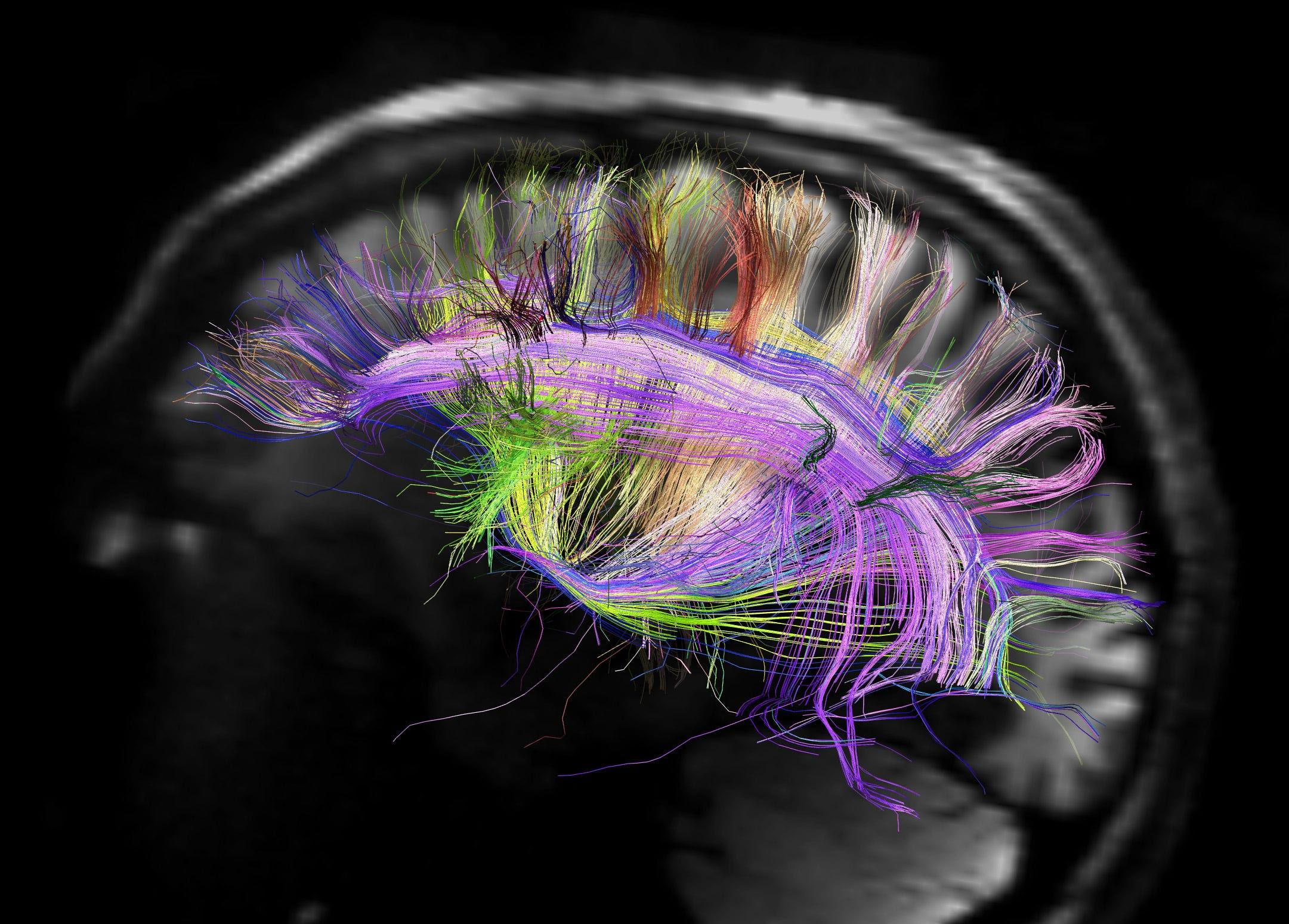 connectome cerebro humano