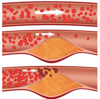 Illustration of arteries at various levels of blockage.