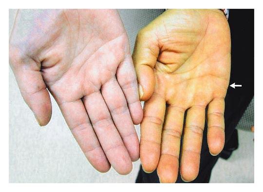 Yellow Palms and Soles in Diabetes Mellitus — NEJM