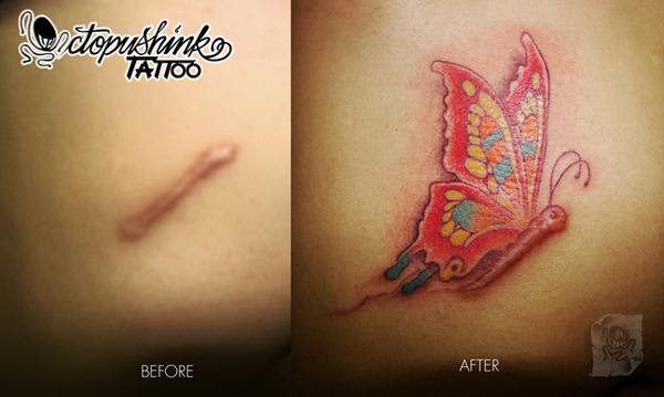 Tattoo Over Scars Pinoyexchangecom
