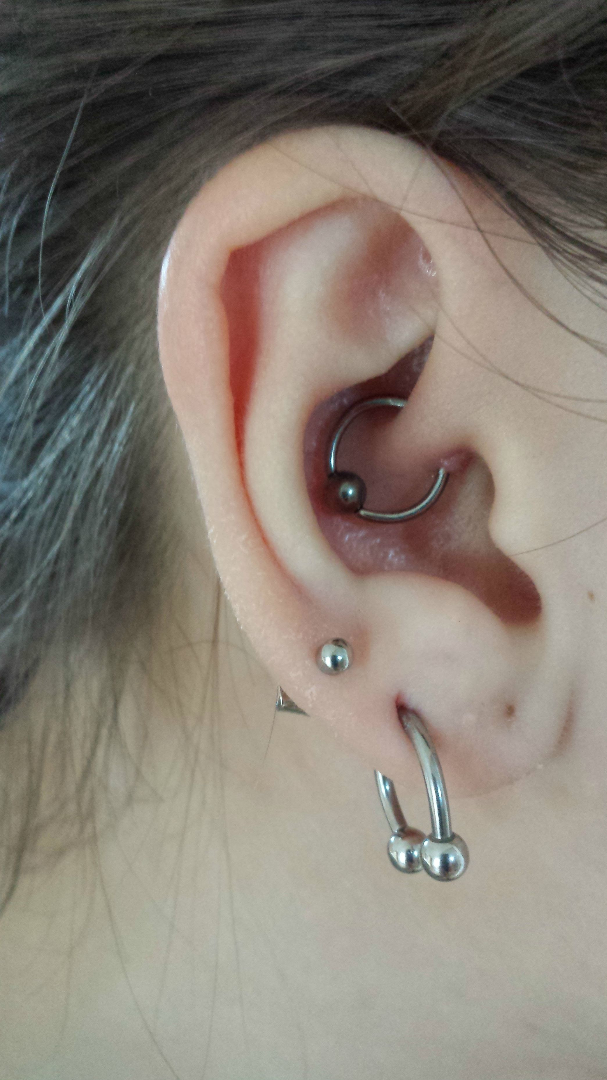 New Daith Ring Just Need To Get Rid Of The Bump Any Ideas