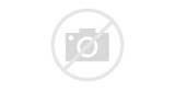 Acute Nerve Pain