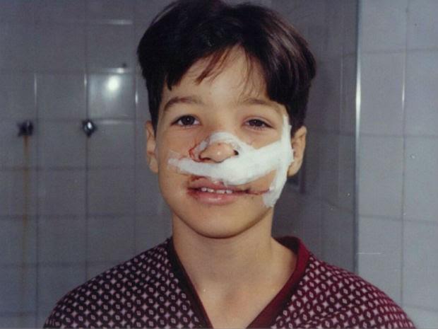 Morador de Sobradinho, Erick Lopes, após fazer cirurgia de retirada de tumor no nariz (Foto: Erick Lopes/Arquivo Pessoal)
