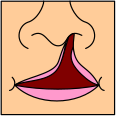 English: Cleft lip, unilateral complete. See c...
