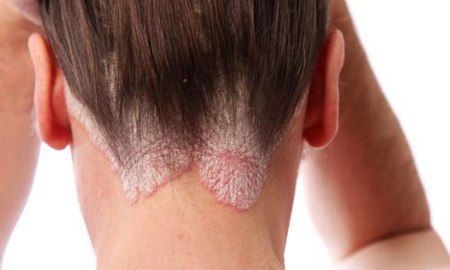 I rimedi naturali per la dermatite seborroica Cure Naturali it - dermatite cuoio capelluto rimedi naturali