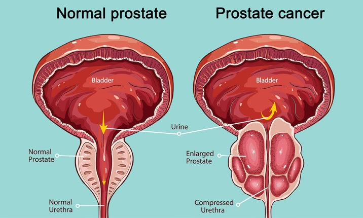 maca root enlarged prostate