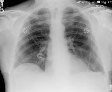 Perfect Chest X Ray AP