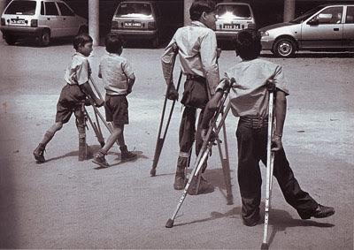 Polio Paralysis India