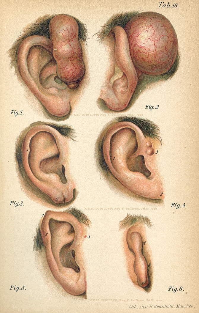 Sinus Ear hole