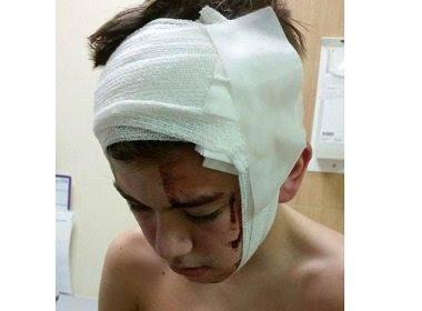 Jovem de 17 anos fica com ferimentos na cabeça devido a ataque de palhaço