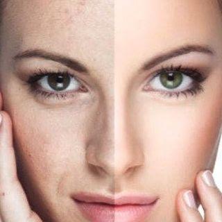 20 Remedios Caseros Para Manchas En La Piel Belleza