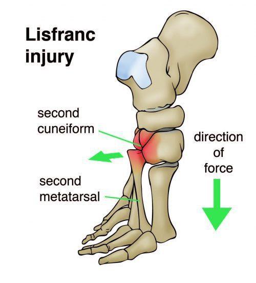 Lisfranc Injury Mechanism of Injury - El Paso Chiropractor