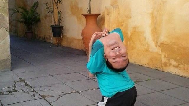 Claudio nasceu com artrogripose congênita e foi desacreditado pelos médicos