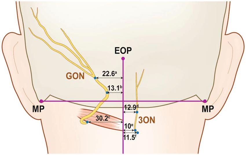 26 Occipital Nerves Diagram