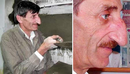 Mehmet Ozyurek World's Longest Nose 4.5 inches