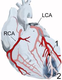 myocardial infarction - Myokardinfarkt - scheme
