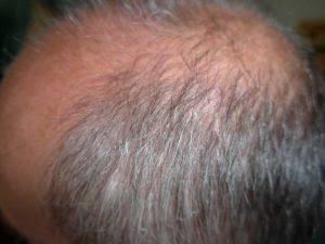 Juckende Kopfhaut Schnelle Hilfe Tipps Kopfhautpflege 2019