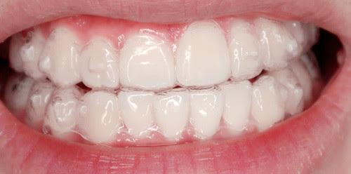 typicalben teeth 15th set of invisalign