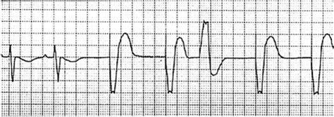 pacemaker bagian  askep laporan pendahuluan penkes