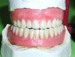 denture_procedure