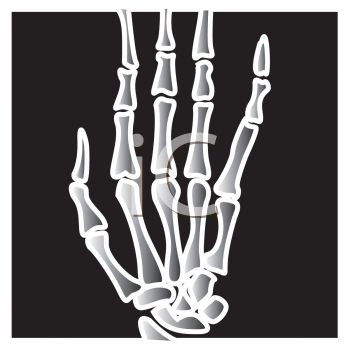 Cartoon X ray of a Hand