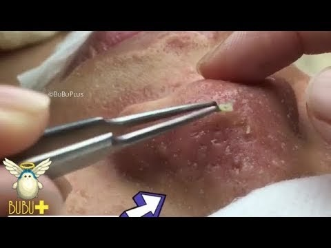 Youtube Acne And Blackhead Removal On Nose   Zika Bhangra